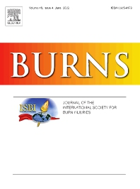 Cover image for Burns