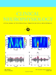 Clinical Neurophysiology - ISSN 1388-2457