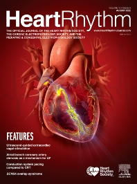 Cover image for Heart Rhythm