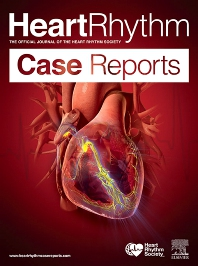 Cover image for HeartRhythm Case Reports