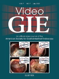 Cover image for VideoGIE