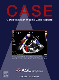 Cover image for CASE