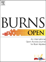 Cover image for Burns Open