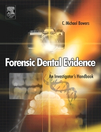 Forensic Dental Evidence - 1st Edition - ISBN: 9780080470146
