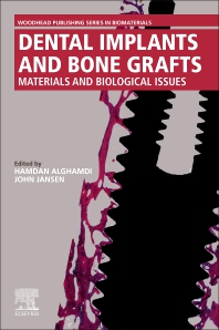 Cover image for Dental Implants and Bone Grafts