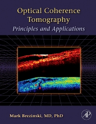 Optical Coherence Tomography - 1st Edition - ISBN: 9780121335700, 9780080464947