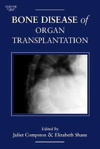 Cover image for Bone Disease of Organ Transplantation