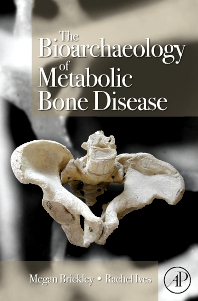 The Bioarchaeology of Metabolic Bone Disease, 1st Edition,Megan Brickley,Rachel Ives,ISBN9780123704863