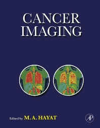 Cancer Imaging - 1st Edition - ISBN: 9780123742124, 9780080569796