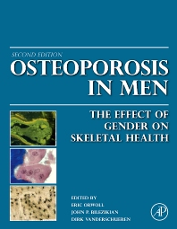 Cover image for Osteoporosis in Men