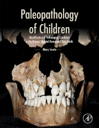 cover of Paleopathology of Children - 1st Edition