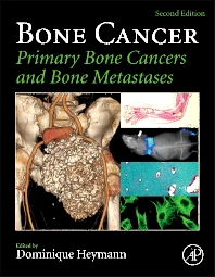 Cover image for Bone Cancer