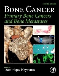 Bone Cancer , 2nd Edition,Dominique Heymann,ISBN9780124167285