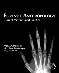 Cover image for Forensic Anthropology