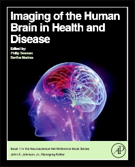 Cover image for Imaging of the Human Brain in Health and Disease