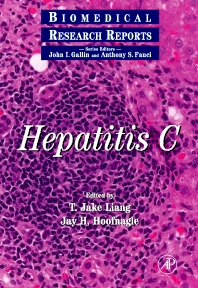 Hepatitis C - 1st Edition - ISBN: 9780124478701, 9780080533919