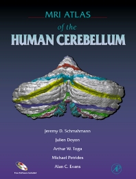 Cover image for MRI Atlas of the Human Cerebellum