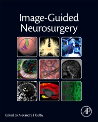 Cover image for Image-Guided Neurosurgery