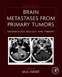 Brain Metastases from Primary Tumors Volume 1 - 1st Edition - ISBN: 9780128008966, 9780128010952