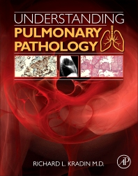Cover image for Understanding Pulmonary Pathology