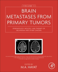 Brain Metastases from Primary Tumors, Volume 3 - 1st Edition - ISBN: 9780128035085, 9780128035597