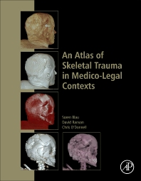 Cover image for An Atlas of Skeletal Trauma in Medico-Legal Contexts