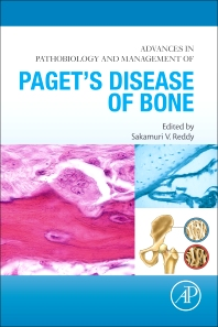 Cover image for Advances in Pathobiology and Management of Paget's Disease of Bone