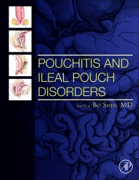 Pouchitis and Ileal Pouch Disorders - 1st Edition - ISBN: 9780128094020