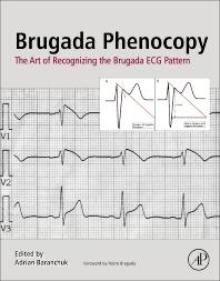 Brugada Phenocopy - 1st Edition - ISBN: 9780128111512