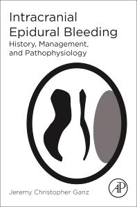 Cover image for Intracranial Epidural Bleeding