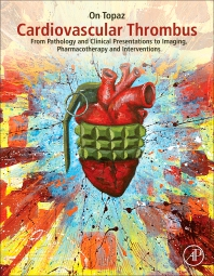 Cardiovascular Thrombus - 1st Edition - ISBN: 9780128126158, 9780128126165