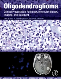 Cover image for Oligodendroglioma