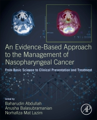 An Evidence-Based Approach to the Management of Nasopharyngeal Cancer - 1st Edition - ISBN: 9780128144039