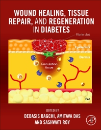 Wound Healing, Tissue Repair, and Regeneration in Diabetes - 1st Edition - ISBN: 9780128164136, 9780128164143