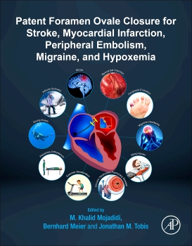 Cover image for PFO Closure for Stroke, Myocardial Infarction, Peripheral Embolism, Migraine, and Hypoxemia