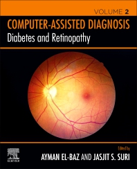 Cover image for Diabetes and Retinopathy