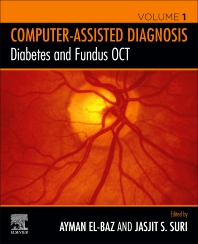 Cover image for Diabetes and Fundus OCT