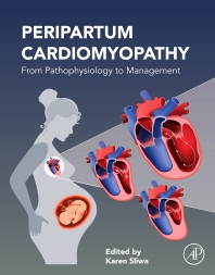 Cover image for Peripartum Cardiomyopathy