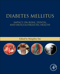 Cover image for Diabetes Mellitus