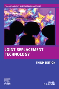 Cover image for Joint Replacement Technology