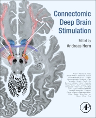 Cover image for Connectomic Deep Brain Stimulation