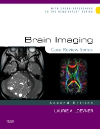 Cover image for Brain Imaging: Case Review Series