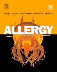Allergy - 3rd Edition - ISBN: 9780323032278