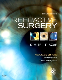 Cover image for Refractive Surgery