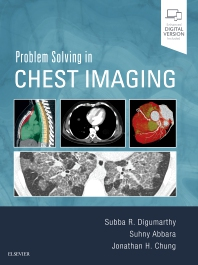 Cover image for Problem Solving in Chest Imaging
