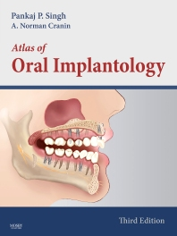 Cover image for Atlas of Oral Implantology