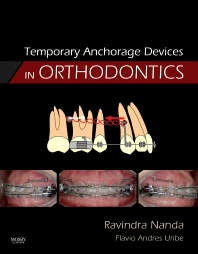 Cover image for Temporary Anchorage Devices in Orthodontics