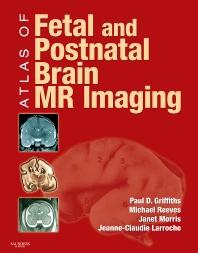 Cover image for Atlas of Fetal and Postnatal Brain MR
