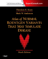 Cover image for Atlas of Normal Roentgen Variants That May Simulate Disease