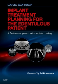 Implant Treatment Planning for the Edentulous Patient - 1st Edition - ISBN: 9780323073684, 9780323087674